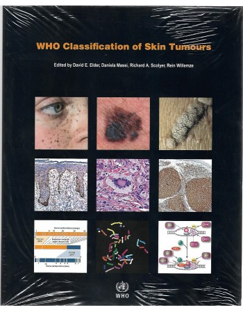 WHO Classification of Skin...