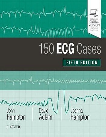 150 ECG Cases 5th Edition