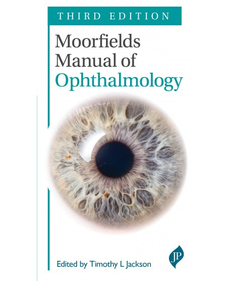 Moorfields Manual of Ophthalmology 3rd Edition