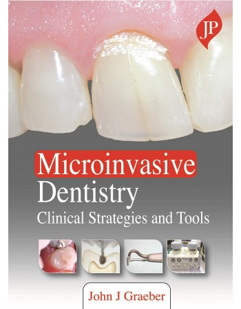 Microinvasive Dentistry:...