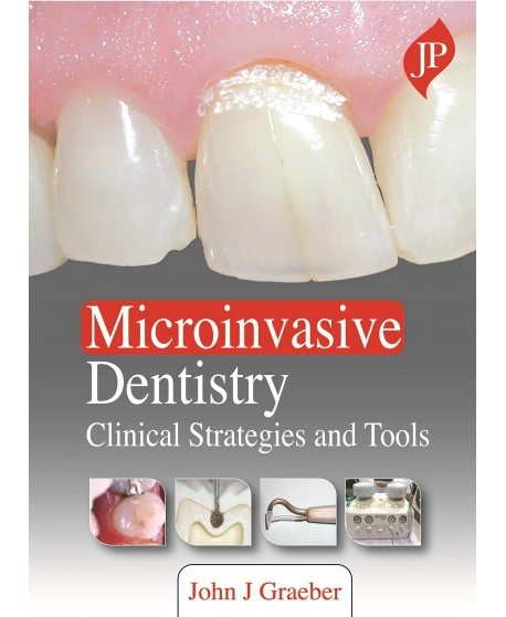 Microinvasive Dentistry: Clinical Strategies and Tools