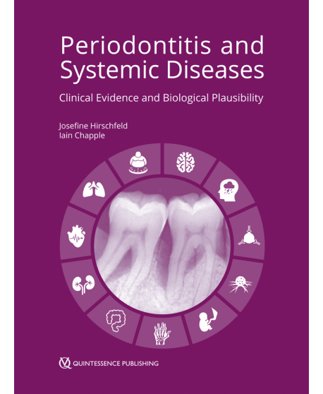 Periodontitis and Systemic Diseases Clinical Evidence and Biological Plausibility
