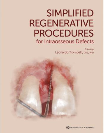Simplified Regenerative...