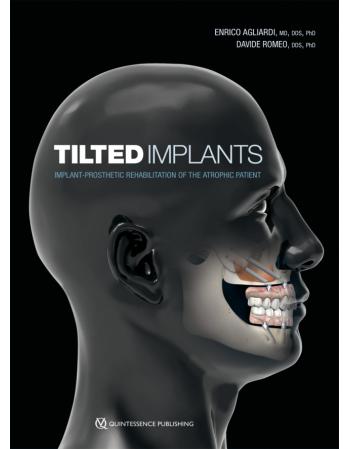 Tilted Implants...