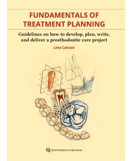 Fundamentals of Treatment Planning Guidelines on How to Develop, Plan, Write, and Deliver a Prosthodontic Care Project